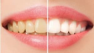 Teeth Whitening Tips: How to Make Your Teeth White and Shine